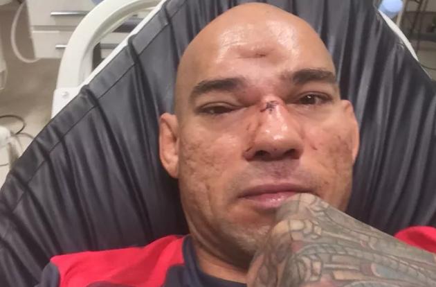 """Evangelista """"Cyborg"""" Santos efter sin skallfraktur: """"Jag är tillbaka om sex månader"""""""