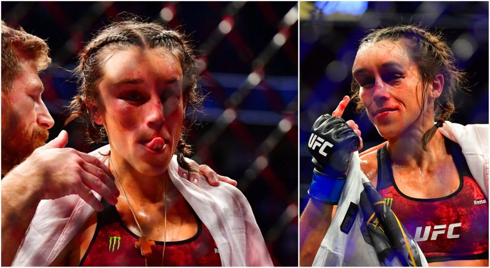 Joanna UFC 248 skada MMA Weili Zhang
